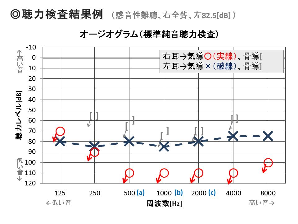 聴力検査結果例 (感音性難聴、右全聾、左82.5[dB] )