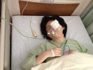 2013年の白内障オペ、手術直後の写真。